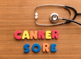 canker-sore